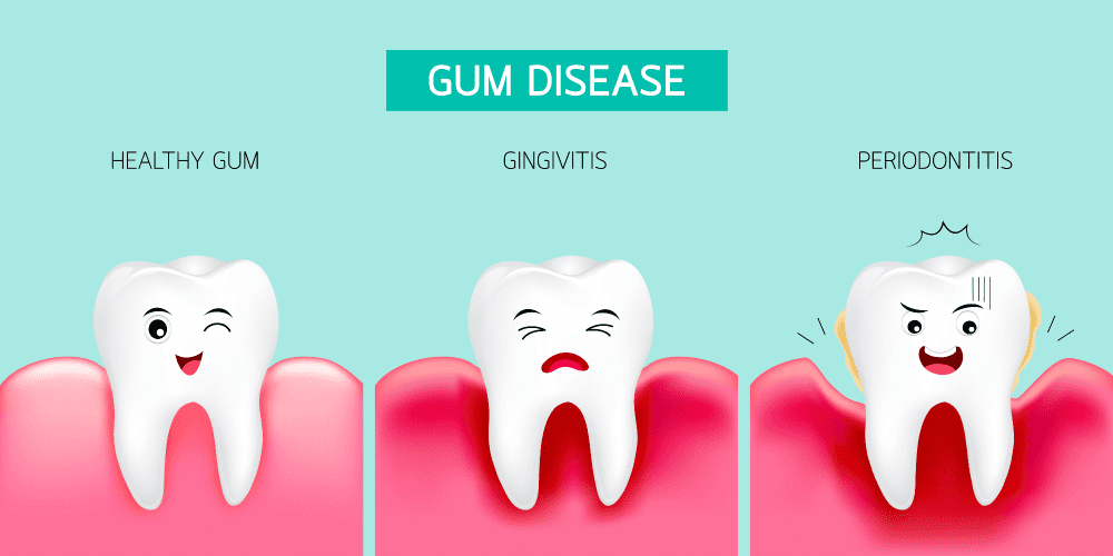 How can I tell if I have gingivitis or periodontitis (gum disease)