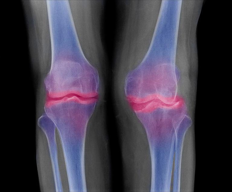 Bone-on-bone Knee Joints