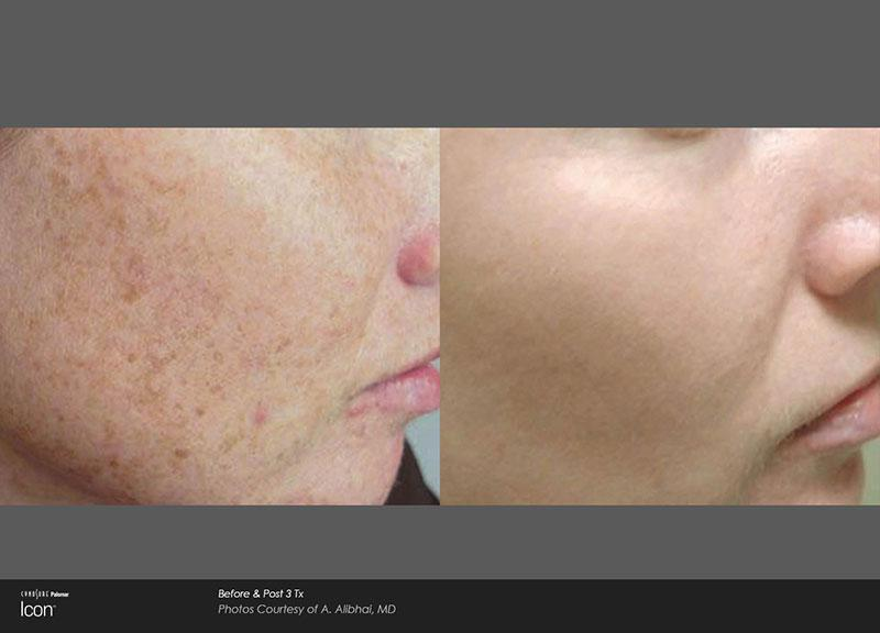 Gallery image about laser treatment before and after