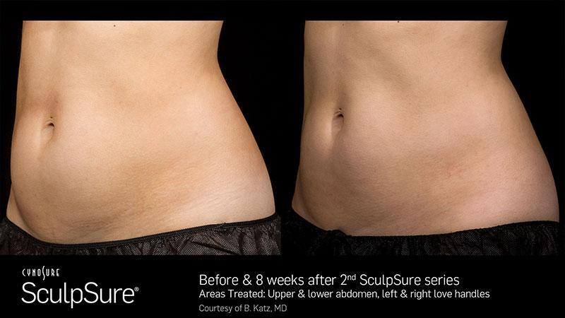 Gallery image about Sculpsure before and after