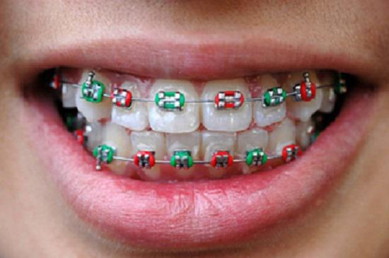 What Role Do Elastics Rubber Bands Play In Orthodontics