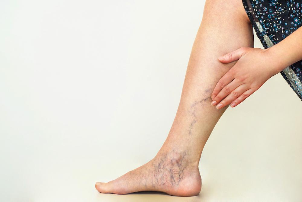 Swollen, twisted varicose veins are not just bothersome; they can be painful and lead to health complications. When you ponde