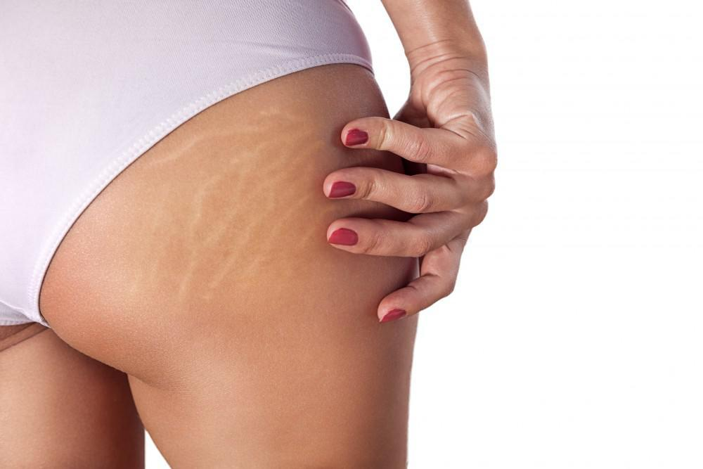 Addressing Stretch Marks