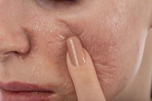 Gallery image about chemical peels