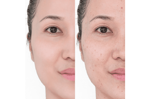 Gallery image about laser treatments