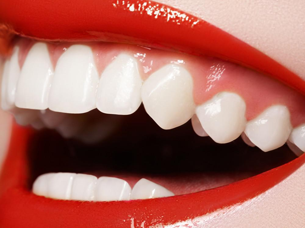 Safe Teeth Whitening How Much Does It Cost And How Does It Work