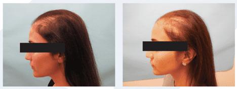 Life Changing Exosome Hair Restoration