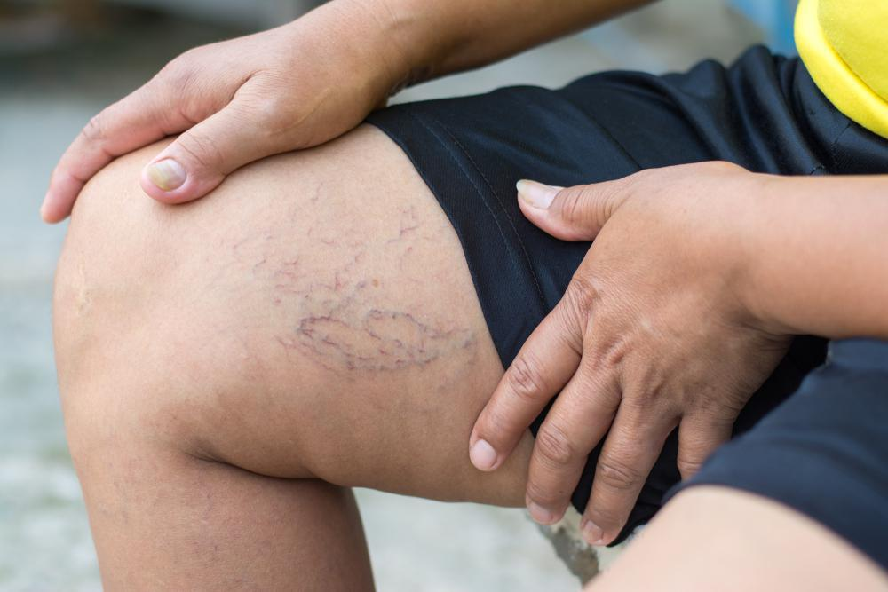 Leg cramps and swelling can be more than just a nuisance. These symptoms may point to an underlying problem with your veins.