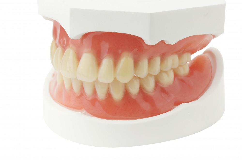 Denture Repair at Berlanga Dentures