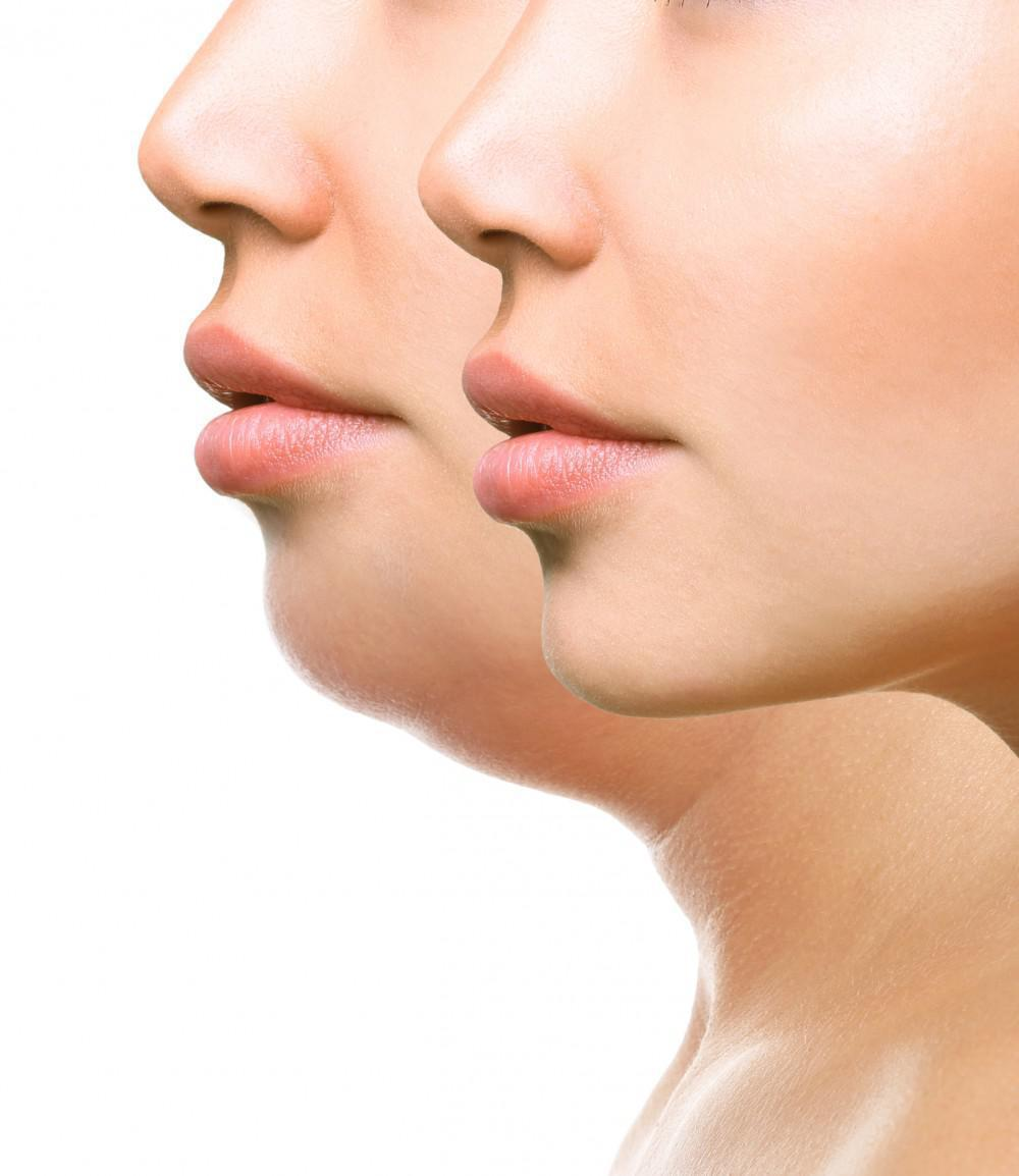 How To Reduce Double Chin Fat Skin Deep Laser Md Physicians