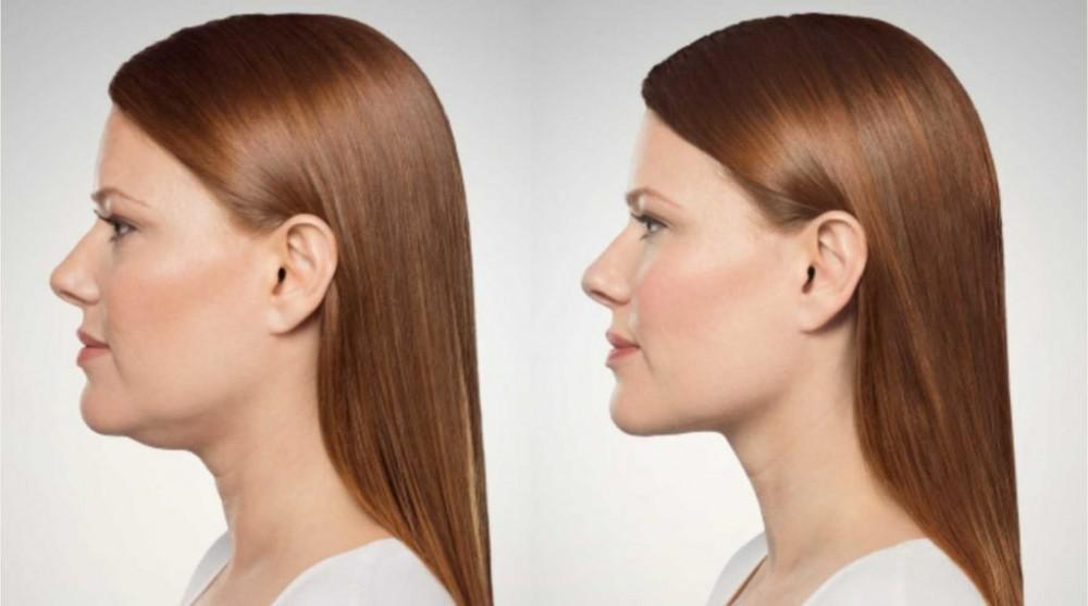 how to reduce excess fat under chin