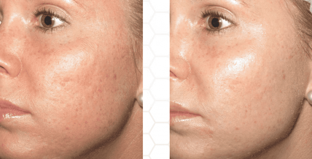 Improve the Appearance of Your Skin with Micro Needling: Skin Deep Laser  MD: Physicians