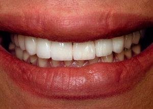 Gallery image about Before & After – dental crowns