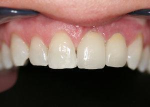 Gallery image about Before & After – dental implants