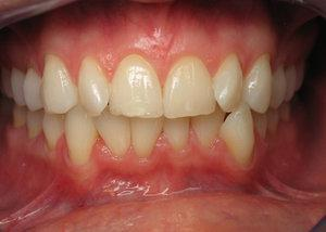 Gallery image about Before & After – invisalign