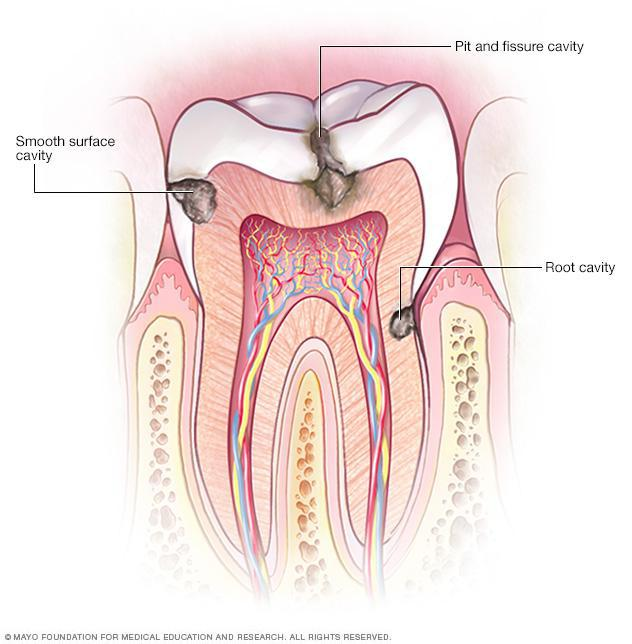 Tooth Cavity or Decay