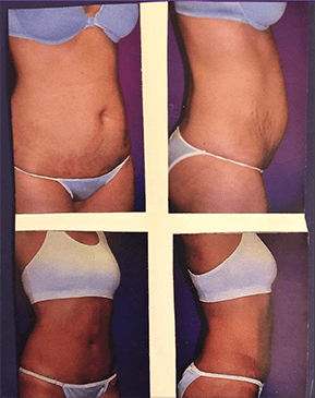 Gallery image about Liposuction by Dr. Brad Roberg Plastic Surgeon