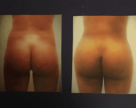 Gallery image about Brazilian Butt Lift by Dr. Brad Roberg Plastic Surgeon