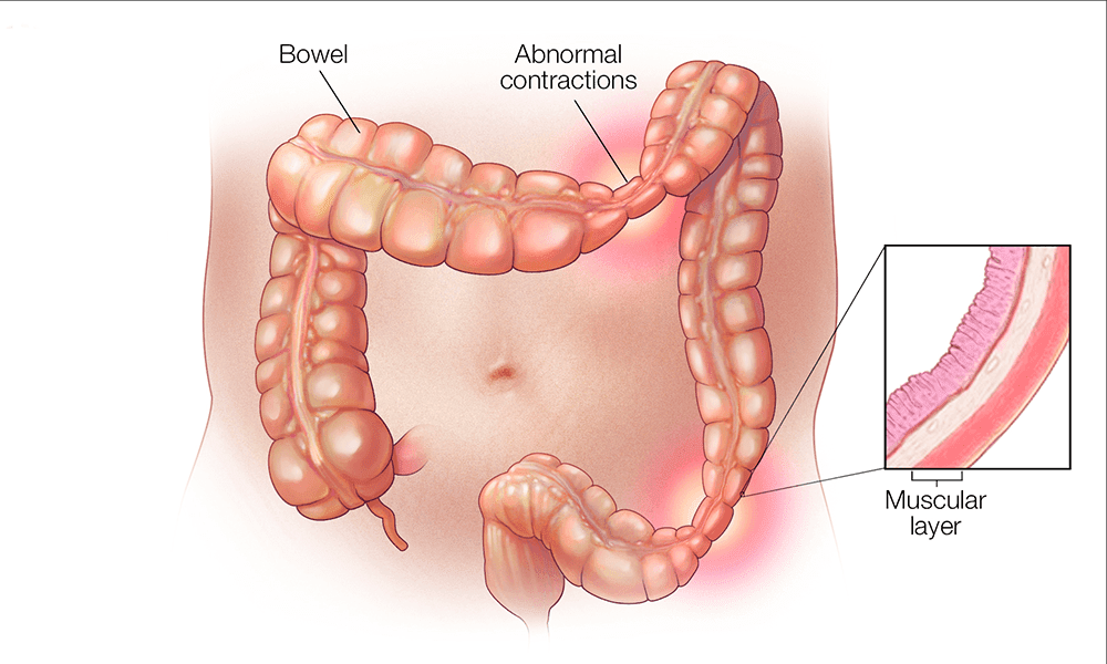 What IBS looks like on your bowel.