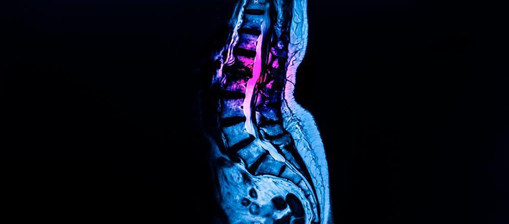 spinal-stenosis