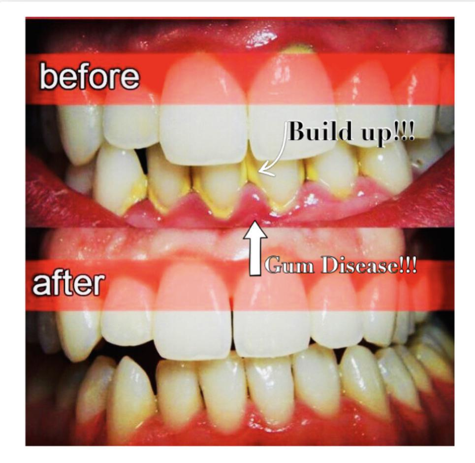 Beginning of GUM DISEASE! Build up around teeth within 3 months causing inflammation, redness and bleeding. Quick fix after D