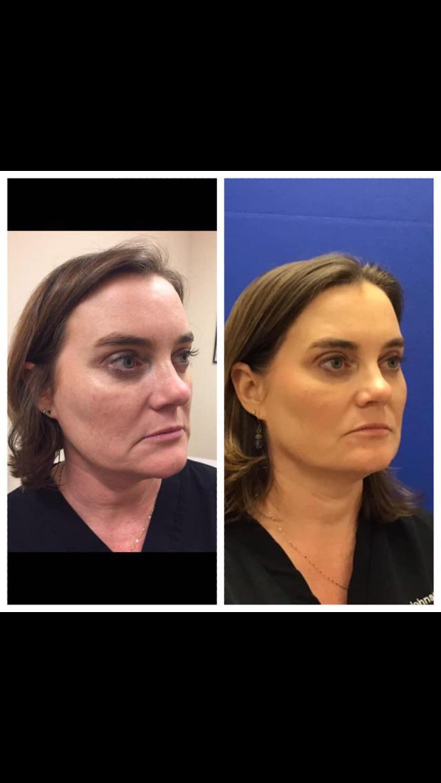 Before and After of Donna Johnston, MD demonstrating Ultherapy