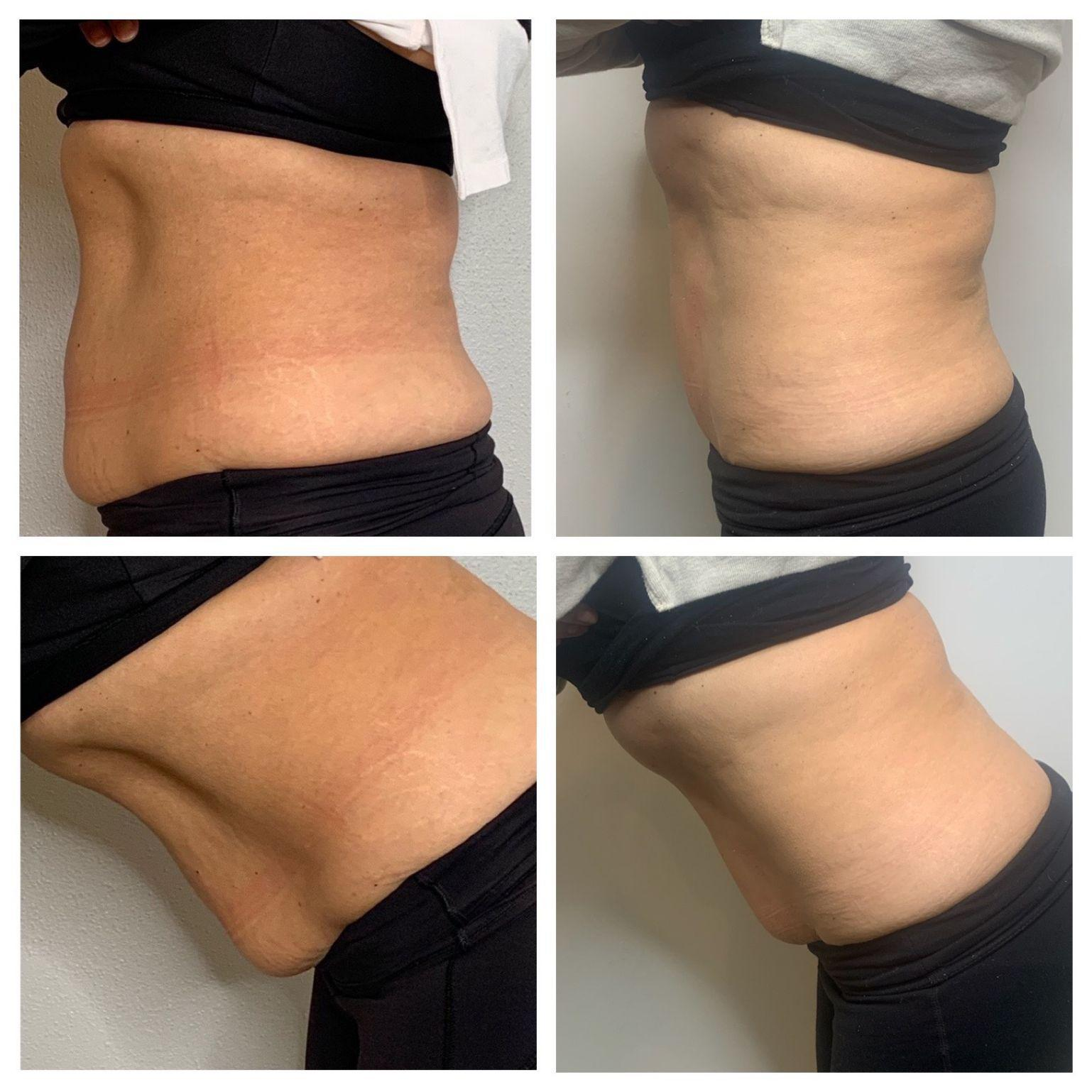 Gallery image about Body Contouring Before & After - gallery