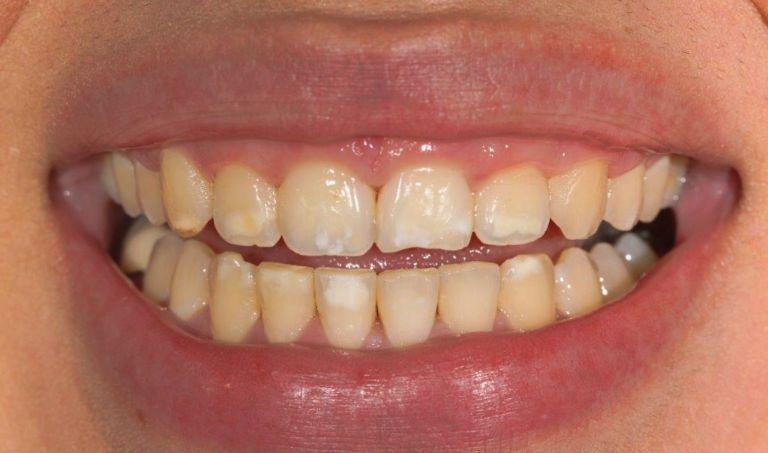 Gallery image about GINGIVAL RECONTOURING