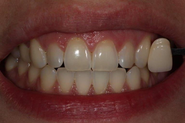 Gallery image about whitening