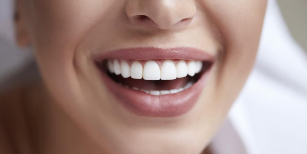 Does Tooth Whitening Affect Fillings Veneers Or Crowns David A