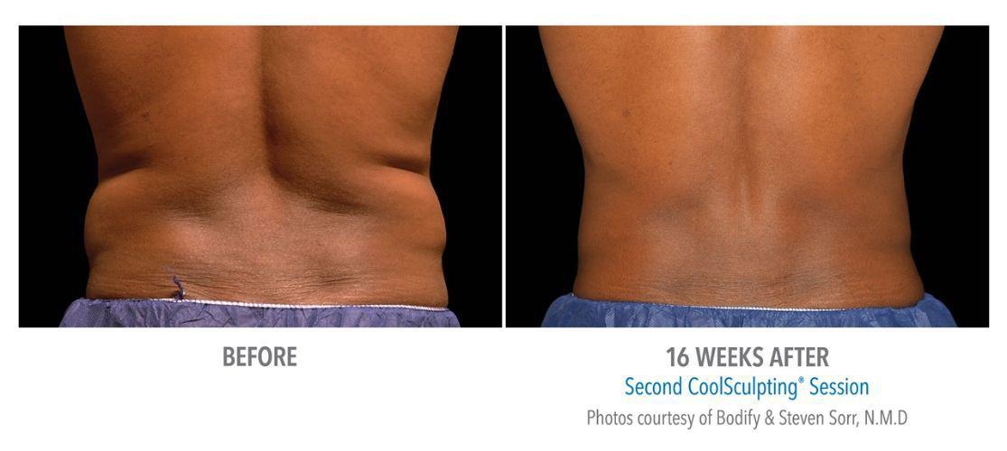 Gallery image about CoolSculpting Gallery