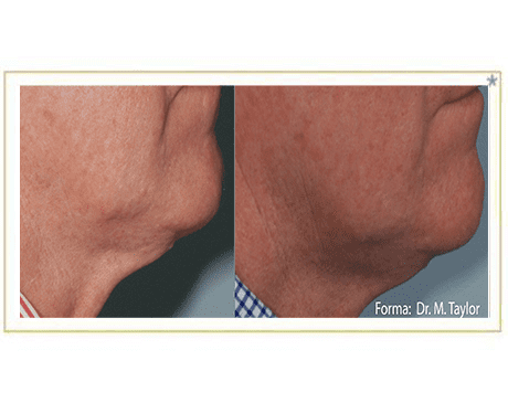 Gallery image about Forma Skin Tightening for Skin & Body