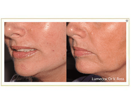 Gallery image about Lumecca Photofacial