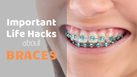 Life hacks about braces