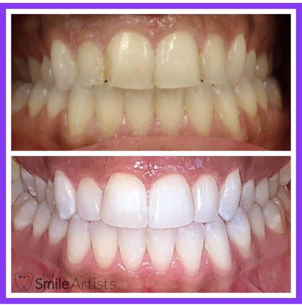 Before and after results of in office 90 min of Zoom whitening