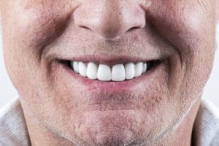 Getting The Right Number Of Porcelain Veneers: Just For Your Smile:  Cosmetic Dentists