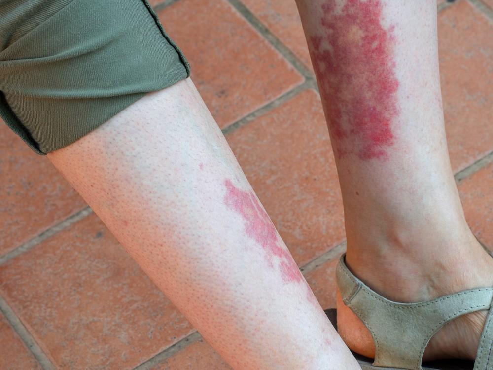 Get a leg up on vasculitis.