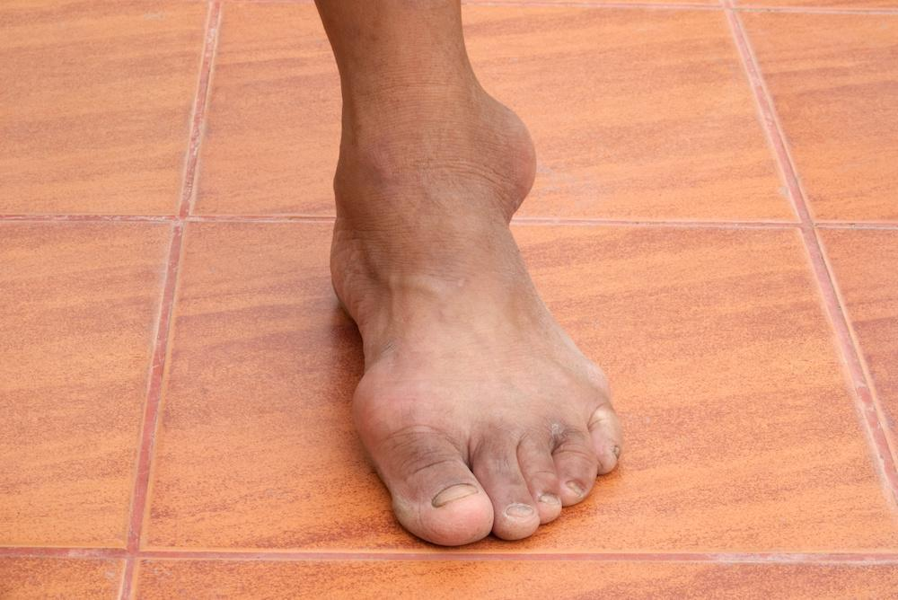 Understanding The 4 Stages of Gout