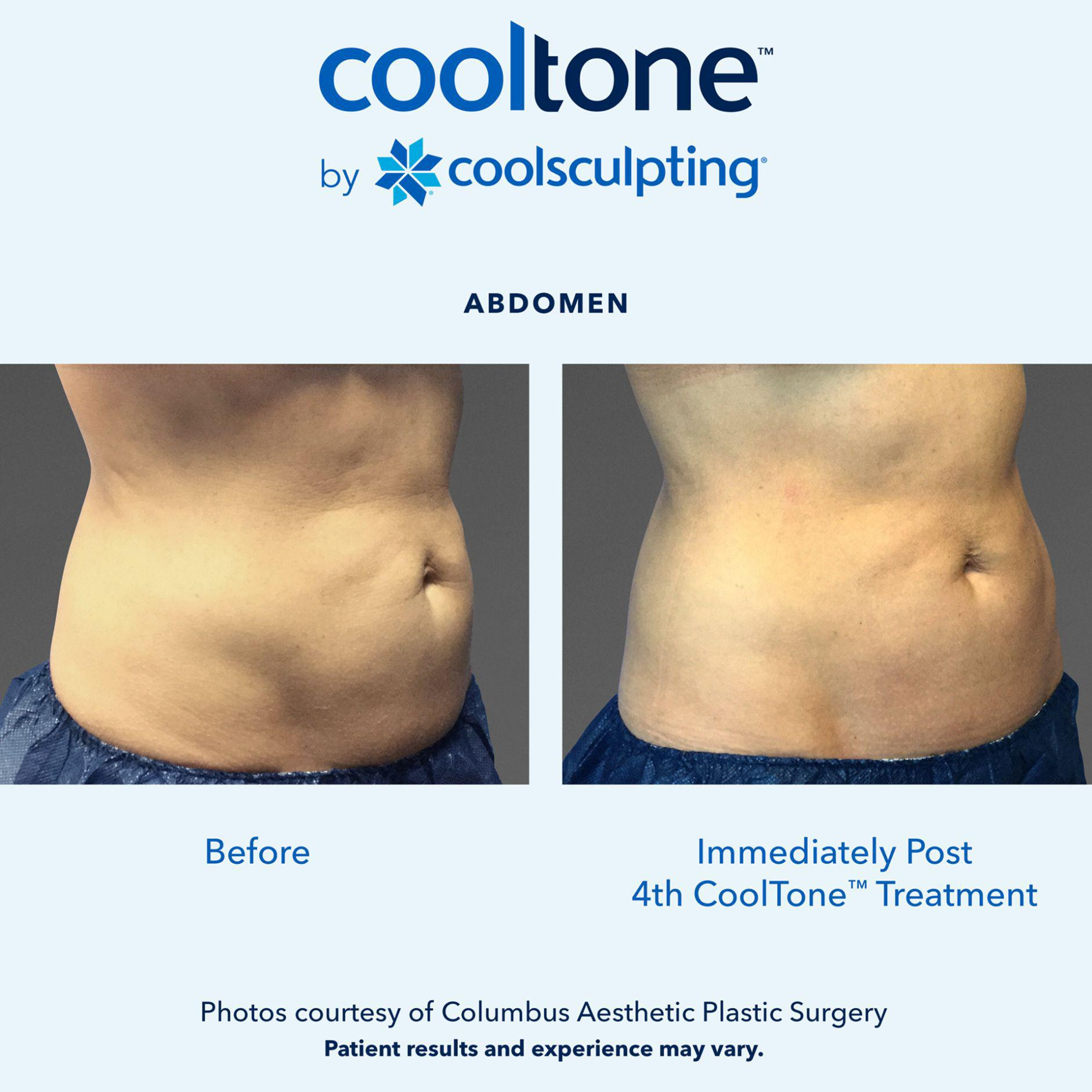 Gallery image about CoolTone Before and After