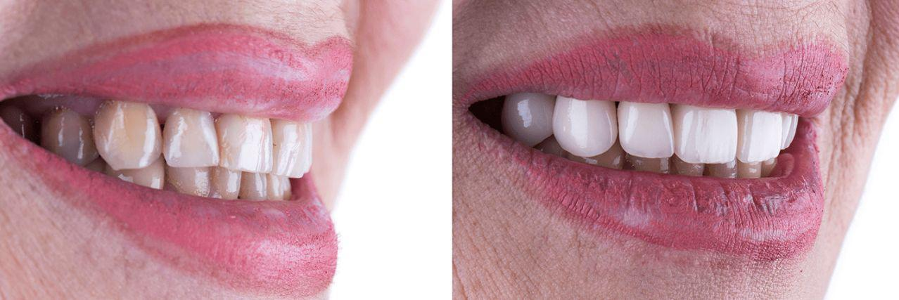 Gallery image about Veneers Before and After