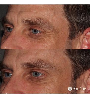 Gallery image about Botox Before & After