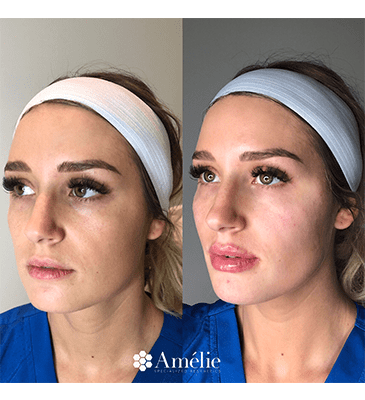 Gallery image about Fillers Before & After