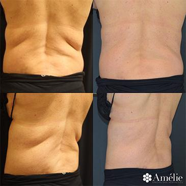Gallery image about Coolsculpting Before & After