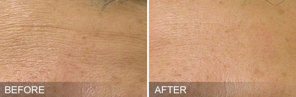 Gallery image about Life Changing Results