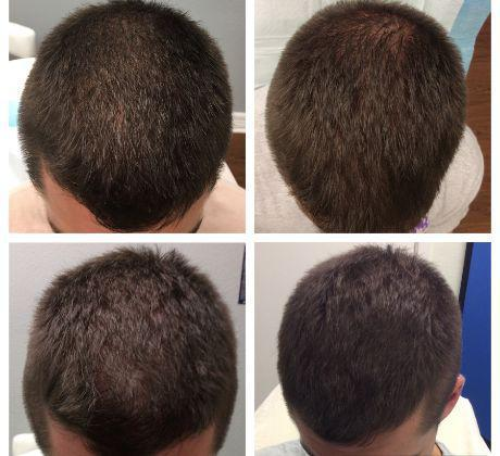 Gallery image about Gallery - PRP Hair Restoration