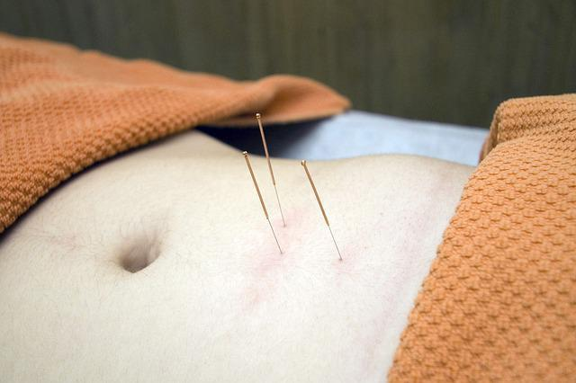 Acupuncture needles in stomach area
