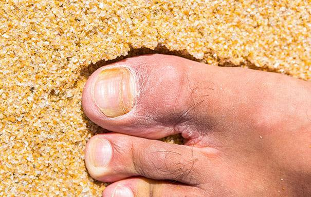 12 Warning Signs Of An Infected Toenail Lasante Health Center Multi Specialty Health Clinic