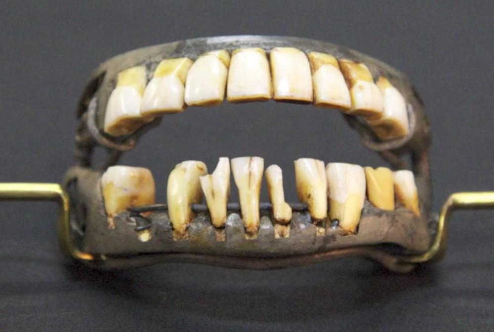Antique Dentures