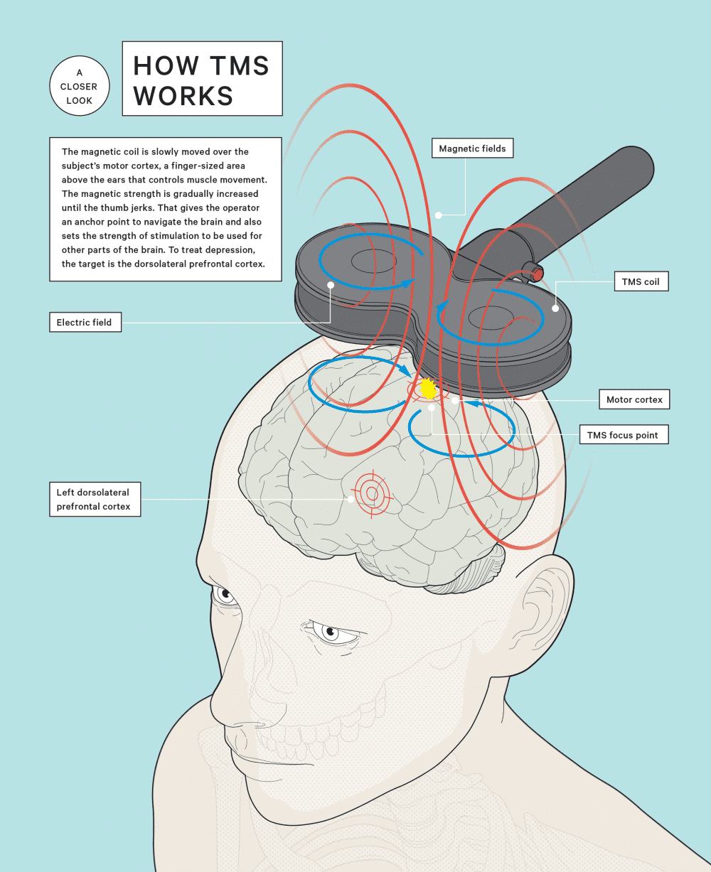 Infographic of TMS Therapy