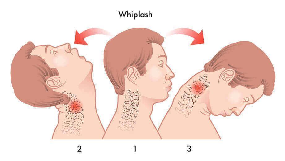 What is Whiplash Injury?: Spine Center and Orthopedic Rehabilitation of  Englewood, PC: Pain Management